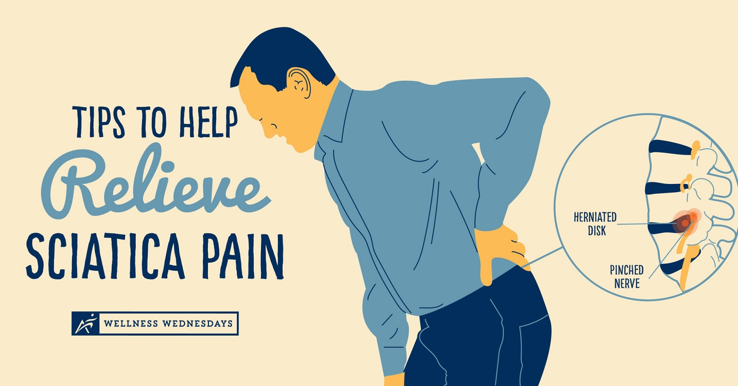 Rent A Treatment Of Sciatica Without Spending An Arm And A Leg